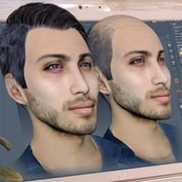 Hair transplantation by 3D scan method
