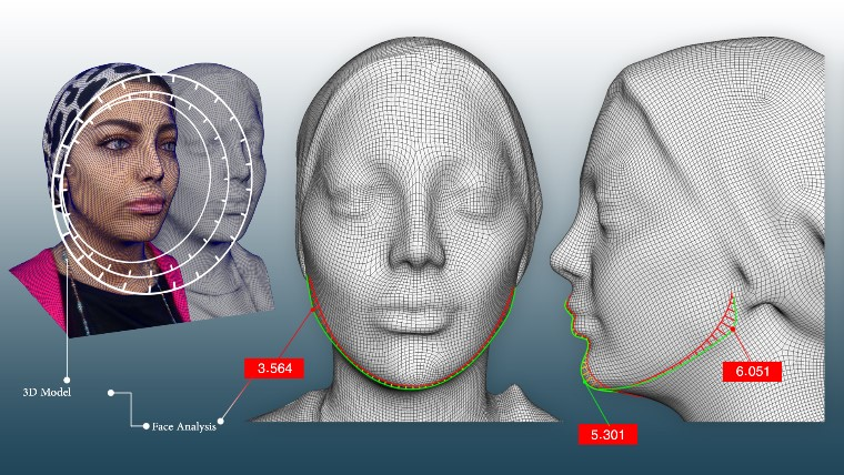 Three-dimensional design for gel and Botox injection